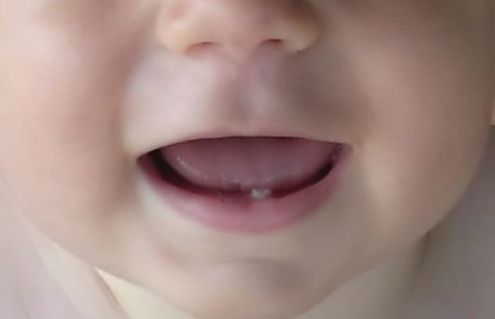 Bebeklerde Ne zaman Diş Çıkar/4 Aylık Bebek Diş Çıkarır Mı